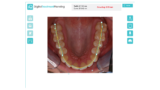 Quick Straight Teeth App
